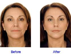 Dermal Fillers Before & After for Fine Lines in the Face
