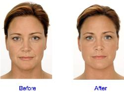Dermal Fillers Before & After: Face